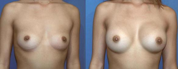 breast enlargement with breast implants C cup size