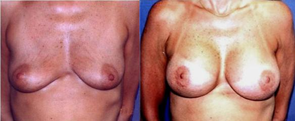 breast uplift or mastopexy with breast implants for enlargement