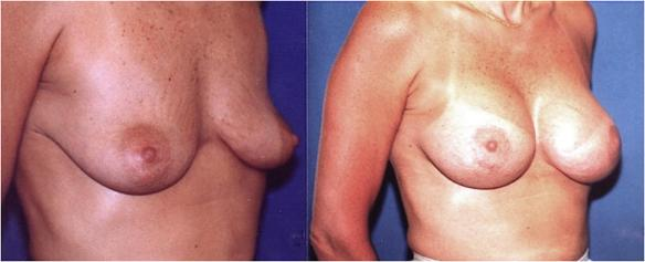 breast lift with breat implants
