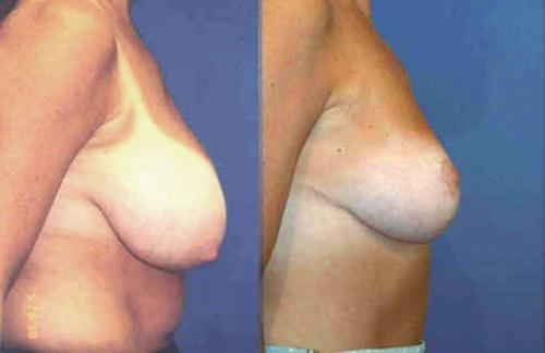 breast reduction from DD cup to a D cup size