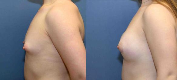 A cup size breast to a B cup size with silicone breast implants