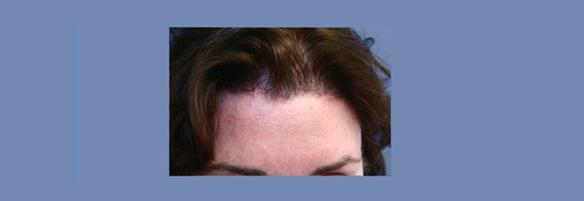 brow lift, browlift, forehead lift, facelift.