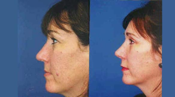 eyelid lift or blepharoplasty with rhinoplasty