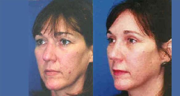 eyelid lift or blepharoplasty with rhinoplasty