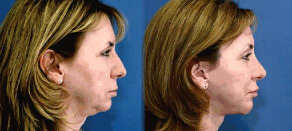 rhinoplasty, chin implant and facelift plastic surgery
