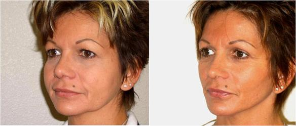 upper eyelid lift for droopy eyelids