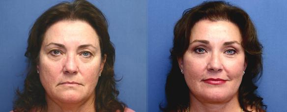 facelift, browlift and necklift in Orange County, Newport Beach, 90210