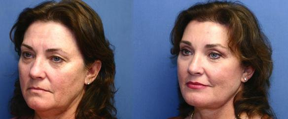 facelift, neck lift, brow lift Westlake Village, Beverly Hills, 90210