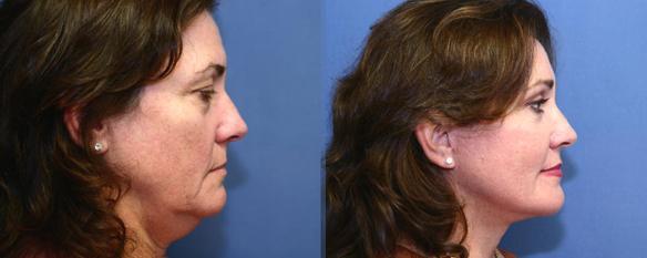 blepharoplasty surgery Beverly Hills eyelid lift