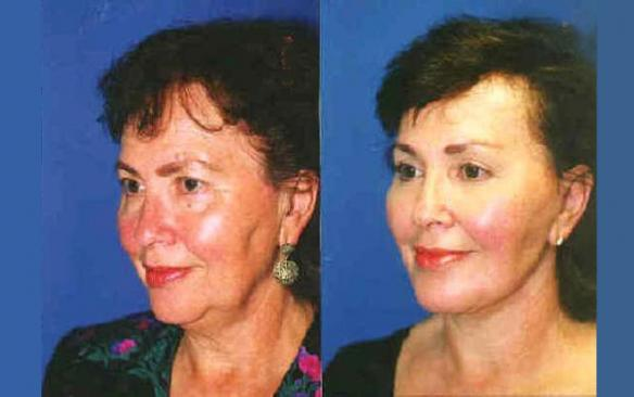 face lift, brow lift, chin implant