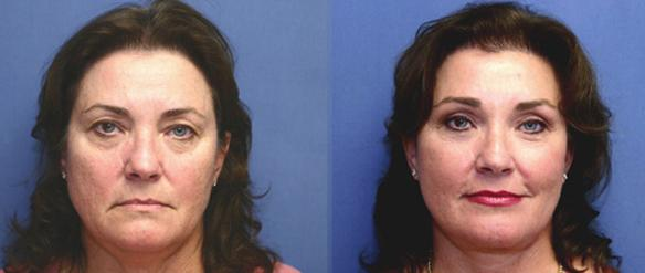 blepharoplasty surgery Beverly Hills eyelid lift