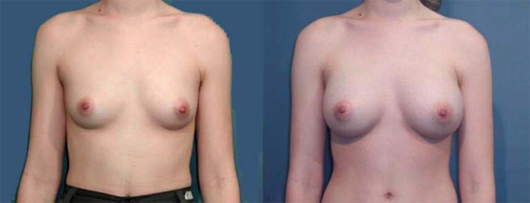 breast augmentation, breast enlargement, breast implants C cup size