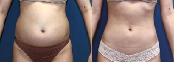liposuction stomach or tummy