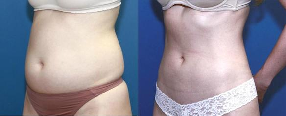 liposuction and body sculpting or liposculpting