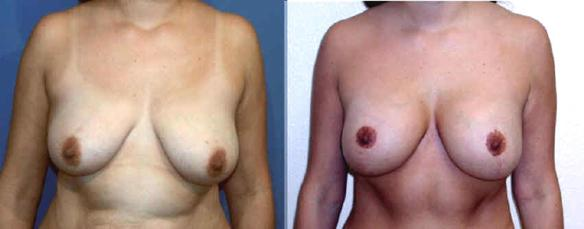 full mastopexy or breast lift with breast implants Beverly Hills