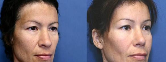 nosejob, rhinoplasty, Hispanic plastic surgery