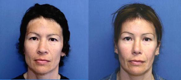 Hispanic rhinoplasty or nose surgery
