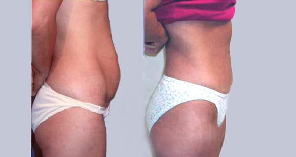 Tummy tuck, Tummytuck, abdominoplasty, Los Angeles