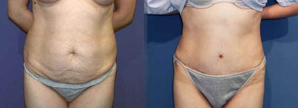 tummy tuck, abdominoplasty, body sculpting Beverly Hills